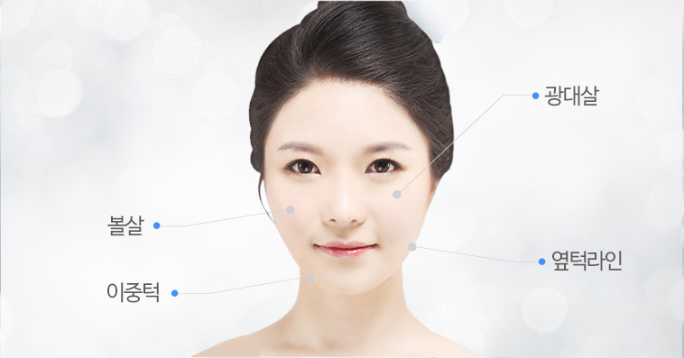 The Injection Sites Fat around Zygoma , Cheek fat , The side line on the Jaw , Double Chin